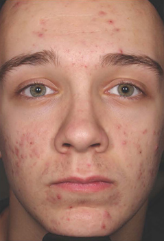 Acne Treatment Patient 2 Patient1 Set1 Before