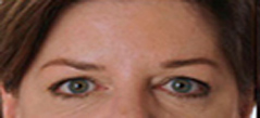 Botox Treatment Patient 5 Patient1 Set1 After Page