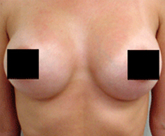 Breast Augmentation Patient 1 Patient1 Set1 After