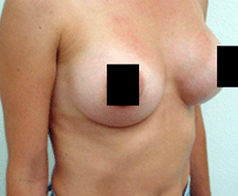 Breast Augmentation Patient 2 Patient1 Set1 After