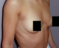 Breast Augmentation Patient 2 Patient1 Set1 Before