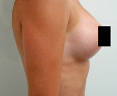 Breast Augmentation Patient 3 Patient1 Set1 After Page