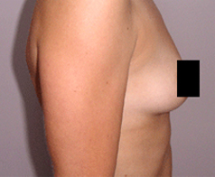 Breast Augmentation Patient 3 Patient1 Set1 Before Page