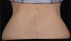 Coolsculpting Patient 1 Patient2 Set2 Before