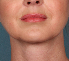 Kybella Patient 1 Patient1 Set1 After