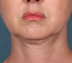 Kybella Patient 1 Patient1 Set1 Before