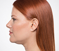 Kybella Patient 2 Patient1 Set1 Before