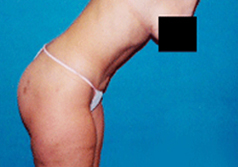 Liposuction Patient 1 Patient1 Set1 After