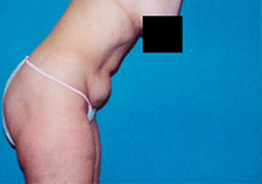 Liposuction Patient 1 Patient1 Set1 Before