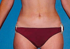 Medial Thigh Lift Patient 1 Patient1 Set1 After