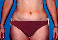 Medial Thigh Lift Patient 1 Patient1 Set1 Before