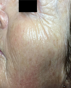 Microneedling Patient 2 Patient1 Set1 After