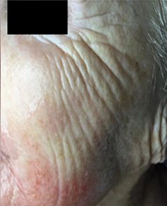 Microneedling Patient 2 Patient1 Set1 Before