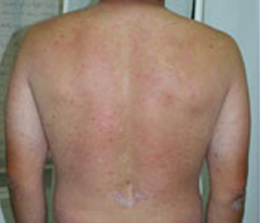 Psoriasis Patient 3 Patient1 Set1 Before