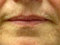 Restylane Patient 2 Patient1 Set1 Before