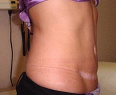 Tummy Tuck (Abdominoplasty) Patient 2 Patient1 Set1 After