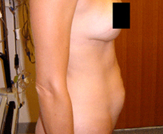 Tummy Tuck (Abdominoplasty) Patient 2 Patient1 Set1 Before
