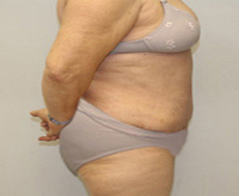 Tummy Tuck (Abdominoplasty) Patient 3 Patient1 Set1 After Page