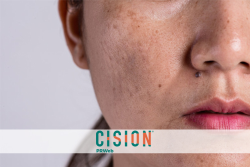 How NOT to See Spots: Reclaiming Sun Damaged and Age Related Skin Spots