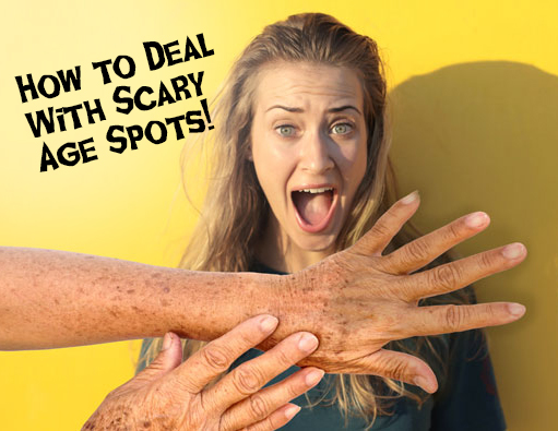 5 Tips on Dealing with Scary Age Spots