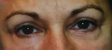 Upper Eyelid Surgery (Blepharoplasty) P1 Patient1 Set1 After