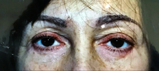 Lower Eyelid Surgery P2 Patient1 Set1 After Page