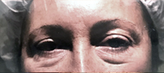 Lower Eyelid Surgery P2 Patient1 Set1 Before Page