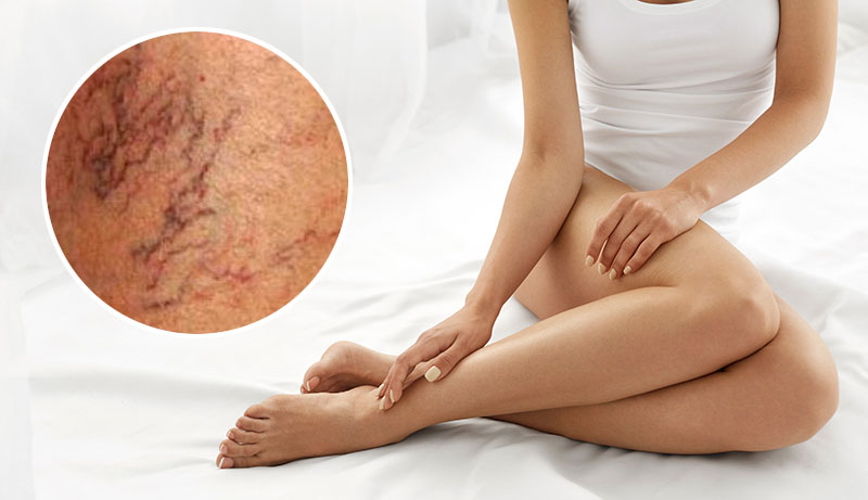 5 Things You Can Do To Prevent Spider Veins